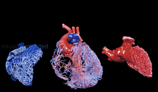 Human heart circulation. Resin cast views of the coronary arteries (red) and veins (blue). The coronary arteries branch into the smaller arterioles and capillaries which supply the heart muscle with oxygen-rich blood.