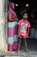 Ayush Kumar, 10, lives in a village that is afflicted with water pollution from nearby leather tanneries. It is suspected that increased exposure to harmful toxins during mothers' pregnancies might be causing the increased number of children being born with mental disabilities in the villages outside Kanpur.