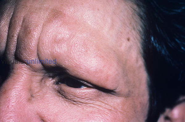 Leprosy symptoms on the skin of the human face.