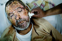 Yousuf Muhammed, the son of rebel fighter Mohammed Mahdi, cleans his father's badly burned face. 55 year old Mohammed Mahdi was on his way to the frontline in Agdabia to fight, when the vehicle he was travelling in was hit by a missile fired by pro-Gadaffi forces. He has severe burns on most of his body that is worse on his face and hands. On 17 February 2011 Libya saw the beginnings of a revolution against the 41 year regime of Col Muammar Gaddafi.