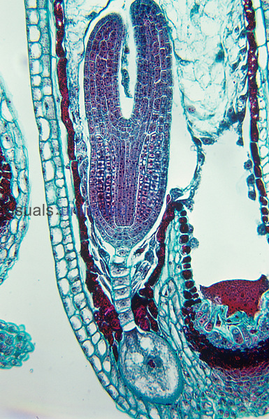 Capsella embryo longitudinal section with early cotyledons. LM.