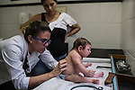 RECIFE, BRAZIL - JANUARY 8: Pediatrics doctor Danielle Cruz checks up on a nine-week-old Luhandra, who was born with microcephaly, while Jusikelly da Silva, 32, mother watches during a follow up visit at The Professor Fernando Figueira Institute of Medicine, a public hospital in Recife, Pernambuco, Brazil, on Friday, Jan. 8, 2016. <br /> <br /> The mosquito-borne Zika virus continues to spread in Brazil, alarming health officials and expecting mothers that their babies will be born with abnormal brain development called microcephaly. While researchers have yet to make a connection, Brazil has the highest number of babies born with mircocephaly - the most cases in Recife, Pernambuco - from mothers who tested positive to the Zika virus. There are about 3,530 suspected cases of zika-related microcephaly in Brazil.