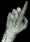X-ray image of a reaching finger (green on black) by Jim Wehtje, specialist in x-ray art and design images.