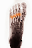 Colorized x-ray of the foot of a 37 year old man showing fractures of his four lateral metatarsals after his foot was run over by a vehicle.