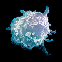 Mast cell, a leucocyte ,white blood cell, which contains the chemical mediators histamine, serotonin and heparin. Mast cells are part of the immune system, and release their contents during a localized inflammatory immune response to invading pathogens and during an allergic reaction.  SEM X8,500