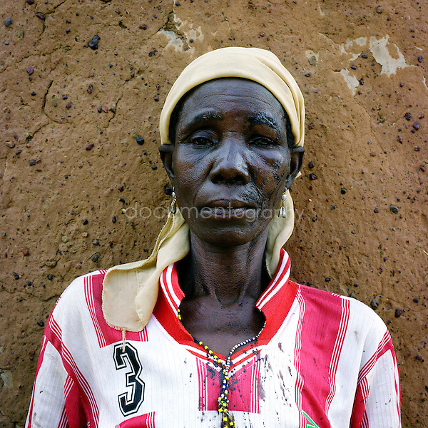 Cobra Ngota has just arrived at the at Gambaga camp. She was accused of practising witchcraft, and still bares the wounds from when she was mistreaded. Cobra Ngota will now receive medical attention from the other women in the camp remains hopefully that now in Gambaga she will find refugee.