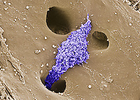 Kuppfer cell macrophage in the liver. SEM X2500
