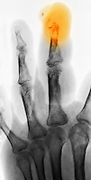 Colorized hand x-ray of a diabetic patient with osteomyelitis of the finger