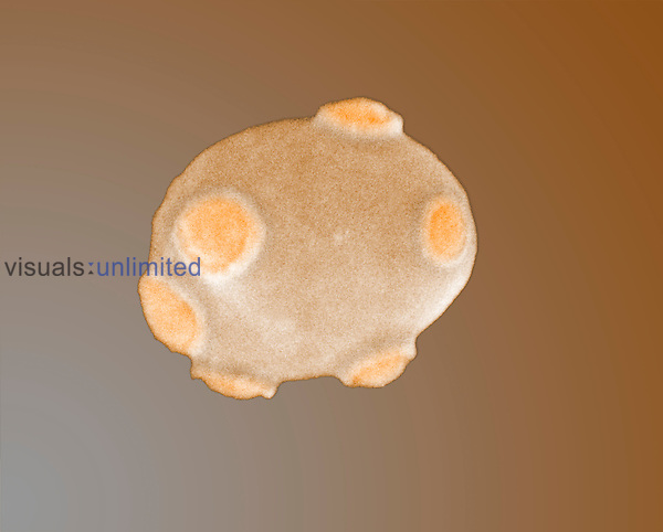 Yeast cell with bud scars. SEM X12,000  **On Page Credit Required**