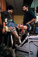 Dayton, Ohio - December 16, 1982. Quadriplegic Dean Baker, 26 years old, regains muscle activity for the first time in 4 years thanks to Dr Petrofsky's program held at the Wright State University. This program was developed to enable computers to help individuals suffering from muscle malfunction, or require rehabilitation, to regain muscle control.