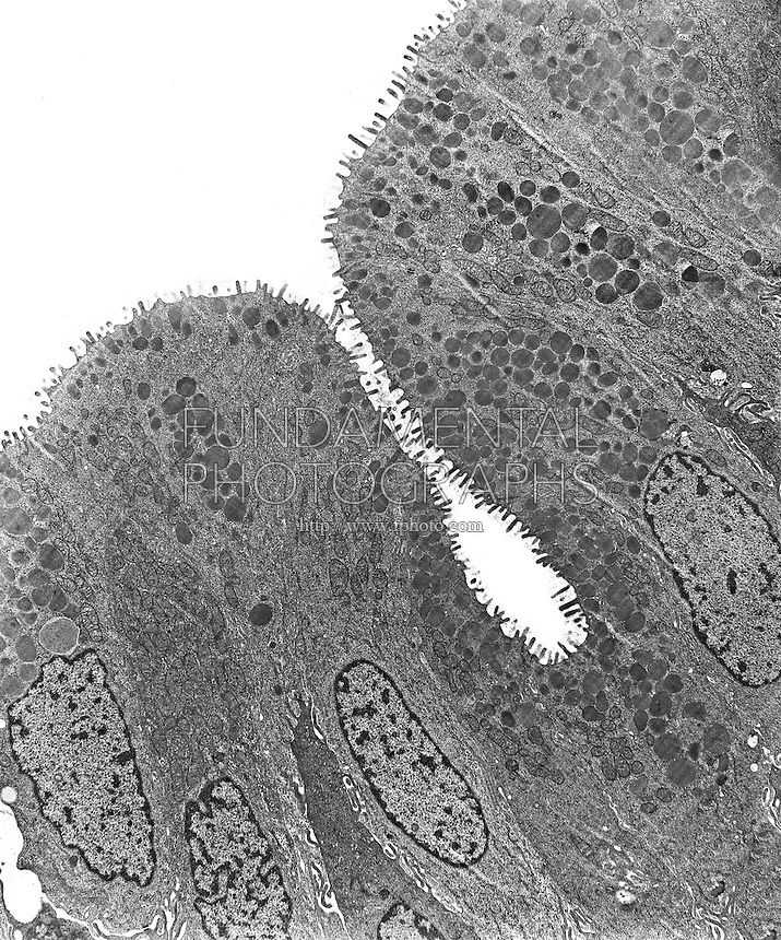 ANIMAL TISSUE - EPITHELIUM<br /> Epithelium From A Toad Bladder, TEM 15,000x mag<br /> Showing mucus secretory cells filled with dense droplets and sodium and water transporting cells filled with mitochondria. Several nuclei are evident as are surface microvilli.