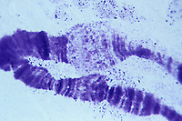 Polytene chromosome of an insect. LM X1000