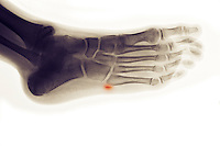Colorized x-ray of an avulsion fracture of the 5th metatarsal of the foot