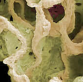 Alveolar walls, human lungs, partially collapsed lung, SEM X500
