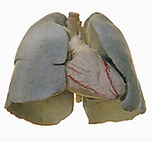 Cadaver dissection of the heart and lungs from the front, showing the coronary vessels.
