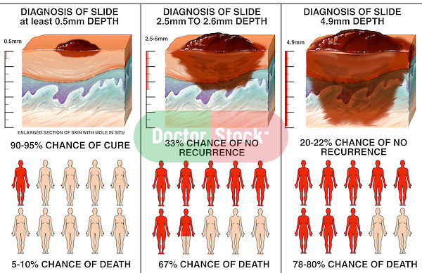 Melanoma: MedlinePlus Medical Encyclopedia