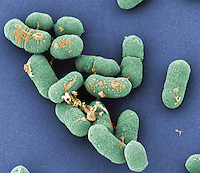 This Gram-positive, rod-shaped Listeria monocytogenes Bacteria is the pathogen of listeriosis and can cause meningitis and spontaneous abortion. SEM
