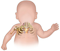 Biomedical illustration of a silhouette of an infant showing the brachial plexus.