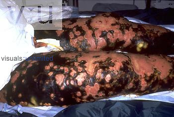 Meningococcal Disease - necrosis