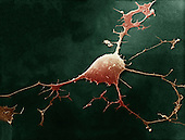 Human neuron, showing the dendrites and the axon. SEM X3000.
