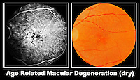 The dry form of age related macular degeneration is one of the most common causes of decreased vision after 60. It is usually evident as a loss of pigment from the retinal pigment epithelium and yellowish deposits in the central retinal zone. Labels.