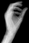 X-ray image of a reaching hand (white on black) by Jim Wehtje, specialist in x-ray art and design images.
