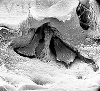 Two Osteoclasts within the Howship's lacuna. They are found within cancellous bone. **On Page Credit Required** - SEM