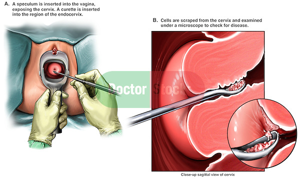 This multi-image surgical exhibit shows typical elements from a Pap Smear examination, a typical test for cervical cancer. This exhibit features a gynecologist's view of the vagina with a speculum placed visualizing the cervix. A second detailed cut-away view shows a curet scraping cells from the cervical opening and surfaces which will later be tested for cancer.