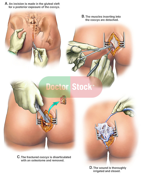 typical coccygectomy procedure (excision of the coccyx -tailbone ...