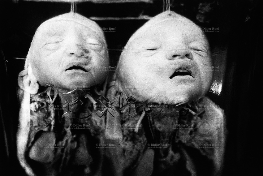 Kazakhstan. Semipalatinsk. Semey State Medical Academy. Dead foetus. Congenital anomalies of the development of the central nervous system due to atom testing. The dead children were conceived near the Semipalatinsk Polygon ( called today National Nuclear Center of Kazakhstan) and are victims of the 456 atomic testing - 116 atmospheric, 340 underground - from 1949 to 1989. The regions high frequency of congenital anomalies is primarily due to fallout from nearby nuclear test sites. Both children's death are the human and environmental effects of nuclear radiation, genetic contamination and pollution from atomic tests programs of the former Soviet Union. Semey is the kazak name for Semipalatinsk and is located in the Eastern Kazakhstan Province. © 2008 Didier Ruef .