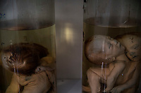 Deformed foetuses are seen inside glass containers at the exhibition room of the Peace Village in Tu Du hospital in Ho Chi Minh City April 14, 2015. Doctors at the hospital blame the high incidence of deformities on the use of the Agent Orange during the Vietnam War. According to the head of the Peace Village, more than two thirds of its over 60 current patients are from areas that were heavily sprayed by the Agent Orange during the Vietnam War and their health conditions are linked to the use of the highly toxic defoliant.   REUTERS/Damir Sagolj