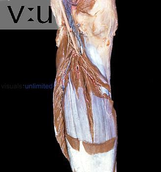 Cadaver dissection of left leg.