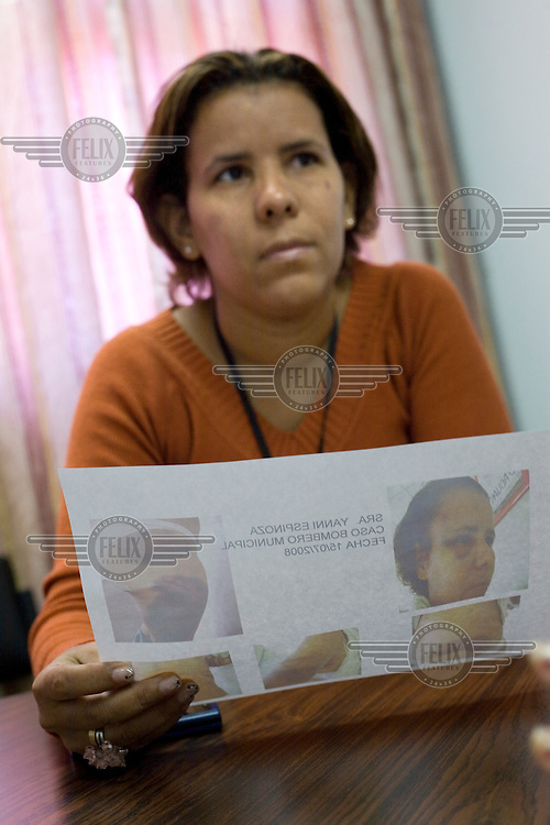 32 year old Yanny Espinoza with photos taken in the Casa de la Mujer (Women's House) of her injuries three days after the attack by her ex-partner. Yanny was brutally beaten by her partner three months previously and is currently being helped by the Casa de la Mujer in her case against her aggressor. There is a restraining order against her former partner and Yanny carries a cellphone and is guaranteed an instant response by the police if she calls a help line.