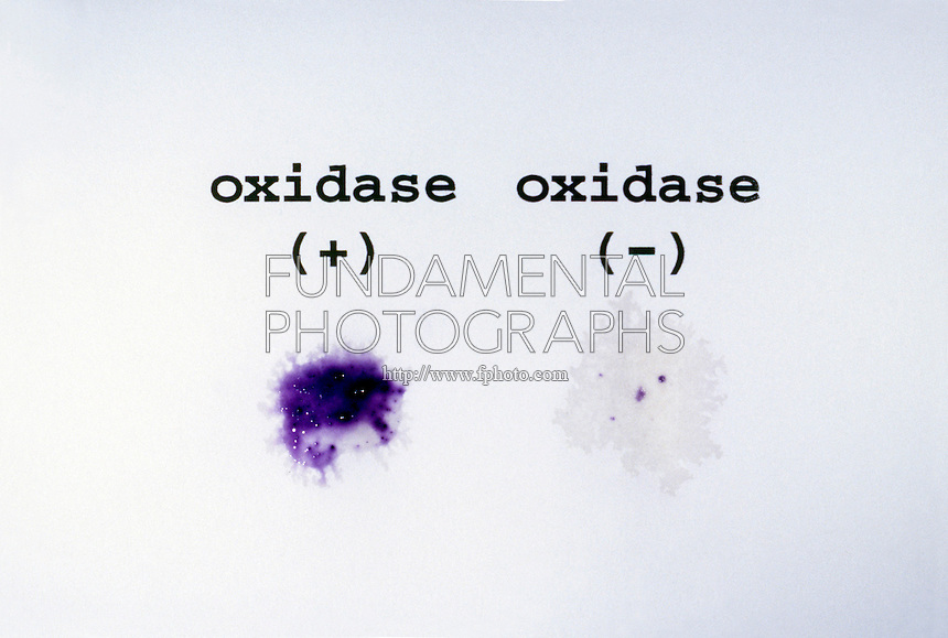MICROBIOLOGY TESTS<br /> Oxidase Test<br /> Results of oxidase test are positive for E. Coli and negative for Pasteurella.  A positive oxidase test is purple in color.