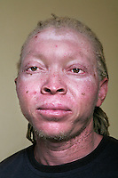 Rakini, one of 12 members of the Albino Revolution Cultural Troupe (ARCT), created in 2000 by artist Tito David Ntanga. They organise musical and theatre performances at conferences, meetings and cultural events. Having already campaigned around issues like HIV/AIDS and civil rights, they are now campaigning against the stigmatisation and killing of albinos. Discrimination against albinos is a serious problem throughout sub-Saharan Africa, but recently in Tanzania albinos have been killed and mutilated, victims of a growing criminal trade in albino body parts fuelled by superstition and greed. Limbs, skin, hair, genitals and blood are believed by witch doctors to bring good luck, and are sold to clients for large sums of money, carrying with them the promise of instant wealth.