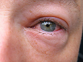 Close up view of a heavy inflammation in the eye<br />