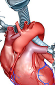 A superior, anterolateral view (right side) of the heart relative to the trachea and bronchi.  The aortic arch, pulmonary arteries and veins and vena cavae are shown. Royalty Free