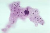 Amoeba proteus Protozoa with extended pseudopods. LM X100