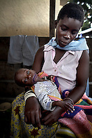 A severely malnourished child receives treatment from MSF at Rutshuru Hospital, North Kivu, DRC.