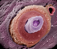 Transverse section of a mammal ,rabbit, hair follicle showing the central medulla surrounded by the cortex and cuticle, outside of which are the layers of the internal and external root sheaths, connective tissue sheath, and collagen fibers.  The hair follicle exists in the subcutaneous tissue and the hair then extends through the dermis and epidermis of the skin.  SEM X3845.  **On Page Credit Required**