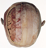 The human brain, meninges, and cranial vault from above. The layers of tissue and bone protecting the brain have been removed stepwise, from the layers of skin (on the right), to the bone of the skull, the meninges, and then the cerebrum. The brain is a large and fragile organ that is protected by many complex layers of tissue and bone.