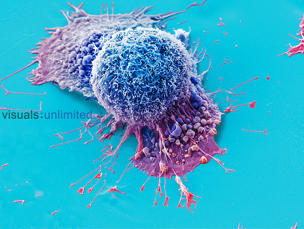 Lung cancer cells with the flatter cell below displaying blebbing. SEM. 44 microns across.