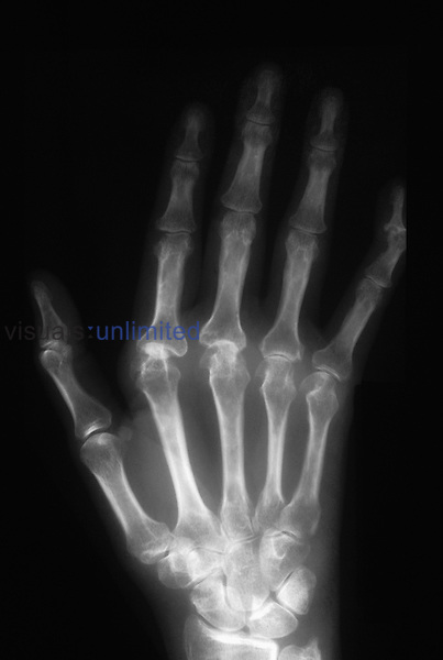 X-ray of classic rheumatoid arthritis in the right hand of an adult human woman.