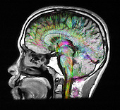Fiber tractography image of the human brain superimposed on an MRI of head showing normal brain structures. Fiber tractography is a 3D modeling technique used to visually represent neural tracts using data collected by diffusion tensor imaging (DTI) and magnetic resonance imaging (MRI).