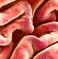 Folds of the human bladder epithelium. SEM.
