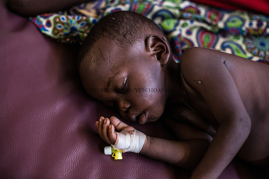 CAR,Bangui:A child is sleeping while being treated for high fever and diareea in the MSF clinic of Mpoko camp. 21th April 2016.<br /> <br /> RCA, Bangui: un enfant dort et est trait&eacute; pour fi&egrave;vre et diarh&eacute;e dans la clinique MSF de Mpoko. 21 avril 2016.