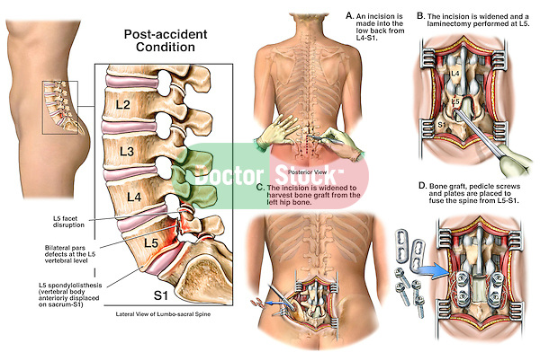 Low Back Injury - L5 Lumbar Spine Fracture and Spondylolisthesis with Surgical Fixation. Depicts  bilateral pars defects (fractured pedicles), facet disruption and spondylolisthesis (fowardly displaced vertebra) at L5, the fifth lumbar vertebra. Surgical steps include: 1. A surgical incision into the lower back from L4 to S1; 2. A laminectomy at L5; 3. Harvesting a bone graft from the left iliac crest (hip bone); and 4. Placing the bone graft, pedicle screws and plates to complet the spinal fusion procedure.