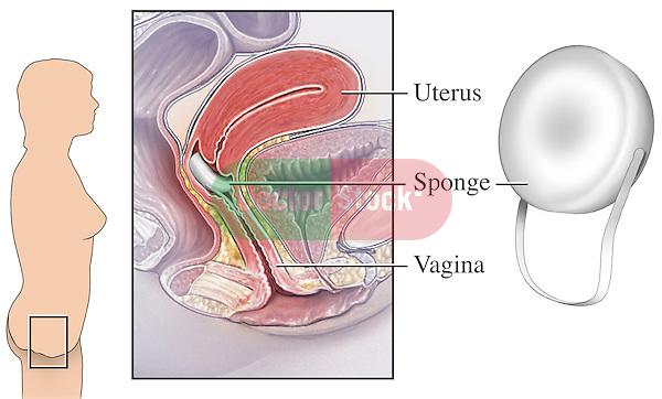 Bleeding contraceptive prevent sponge vaginal