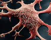 Human glial cell. Glial cells far outnumber the neurons that they support in several ways. SEM X13,000.