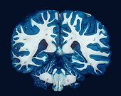 Human Brain coronal section with the gray matter stained blue.